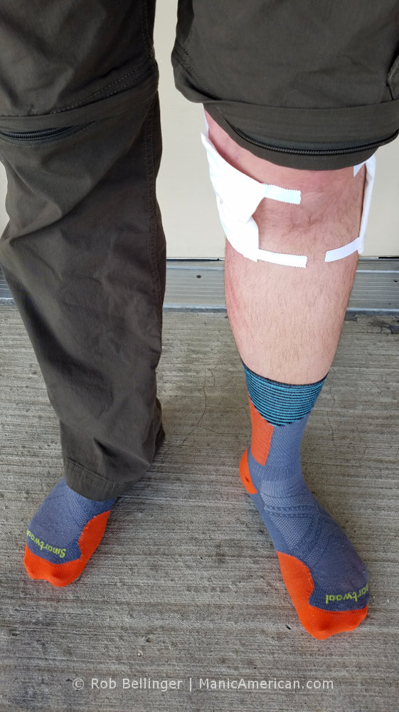 A man's legs, with one cargo pantleg removed to reveal bandages around the knee
